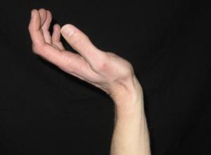 Bad fret hand position 1 - https://supertonicguitar.com/wp-content/uploads/2018/01/guitar-bad-fret-hand-position.png